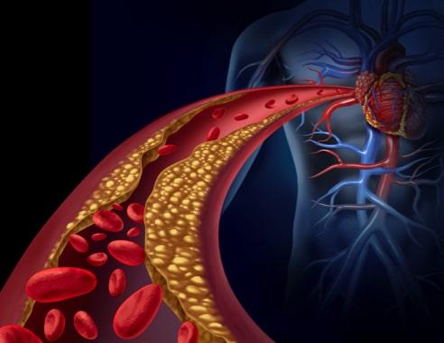 Können natürliche Aminosäuren bei Cholesterin helfen?