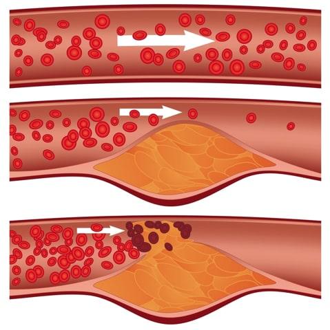 Risiko bei erhöhen Cholesterinwerten