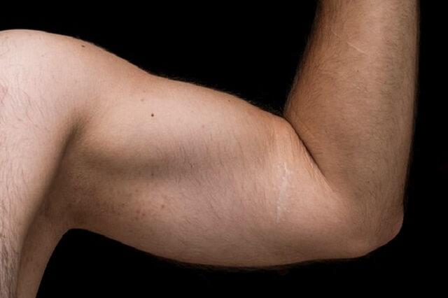 Wie Funktioniert Der Muskelaufbau Nach Einer Humerusfraktur?